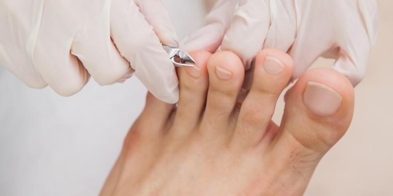 Fußpflegerin pflegt die Zehnägel